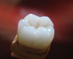 Что если у вас крошатся зубы во сне?