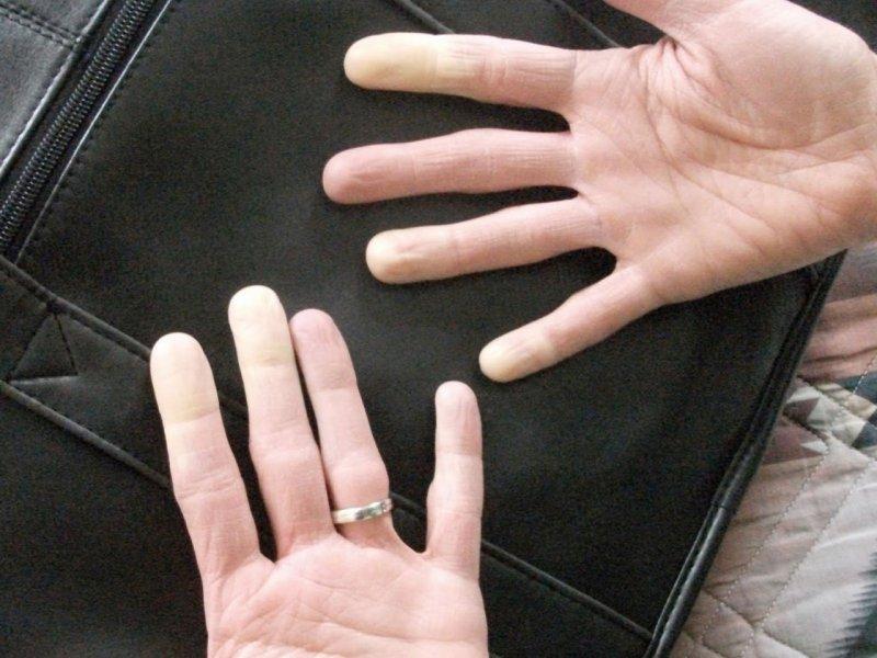 Чешутся кончики пальцев: причина почему и от чего зуд