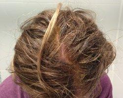Репейная маска: спасение для сухих и ломких волос в домашних условиях