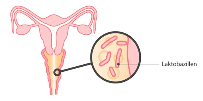 Бактериальный вагиноз: симптомы, диагностика, методы лечения
