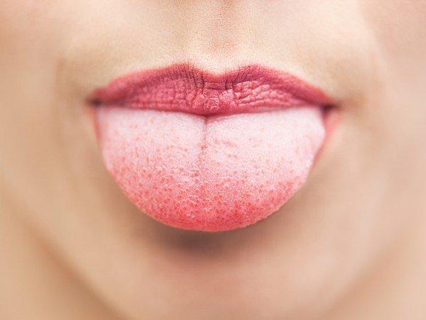 Волдыри на языке. Причины возникновения и лечение волдырей в ротовой полости