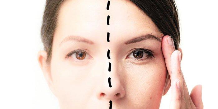 5 ошибок в уходе за кожей вокруг глаз: что именно вы делаете не так