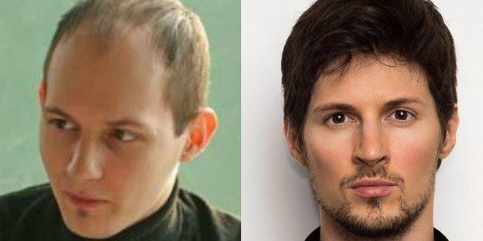 Какие операции помогли Павлу Дурову превратиться из ботаника в мачо: фото до и после пластики