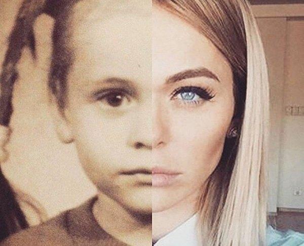 анна хилькевич фото до пластики и после фото