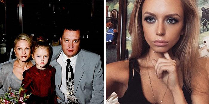 Милана Кержакова - фото до и после пластики