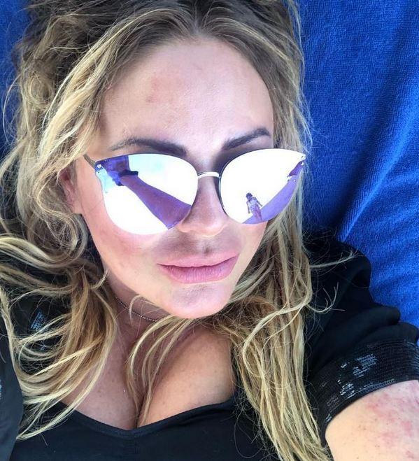 «Вот она, красота без Фотошопа...»: Юлия Началова на отдыхе покрылась красными пятнами