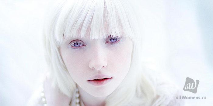 albinas sexis